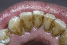 зубной камень удаление