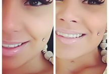 Dimples *-*
