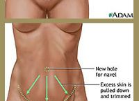 """Tummy Tuck: a closer look. / Information about the """"Tummy Tuck"""" procedure."""