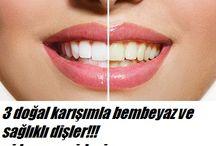 güzel diş