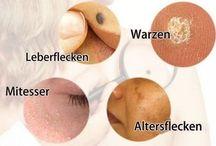 Warzen und Haut