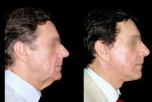 Face Lift / Rejuvenescimento facial