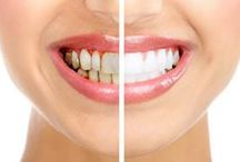 #Teeth #Whitening