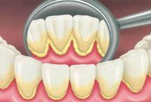 Δόντια πέτρα κλπ