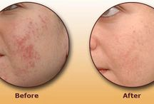 Laser Acne Scar Treatment in Delhi / Undergo for Laser Acne Scar Treatment at Kashyap Skin Clinic http://www.kashyapskinclinics.com/laser-acne-scar-treatment.html