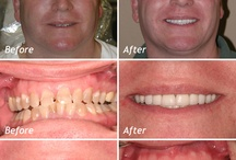 Dental Implants / Implants are often considered over the installation of restorations such as dental bridges, because bridges will require the adjacent teeth to be drilled down. Bridges also increase the likelihood of decay underneath.