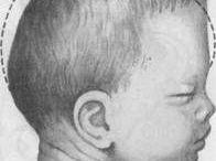 Osteopathy / Очень часто вижу как родители младенцев не разрешают им засовывать в рот руки.  Спрашиваю почему они это делают. В основном отвечают или что руки могут быть грязными, или что ребёнок привыкнет сосать палец и испортит себе зубы.  Дорогие родители!  В первой год жизни, ребенок использует свой рот, чтобы исследовать внешний мир. Начиная с сосательного рефлекса, рот позже становится важным рецептором для понимания и узнавания мира вокруг него - через вкус, текстуру. Подбирая предметы и засовывая их в рот, малыш узнает о размерах путем сопоставления ощущений во рту с тем, как предмет выглядит (визуальный опыт) и с тем, как он ощущается (сенсорный опыт). Для ребёнка важен этот этап развития и не стоит его этого лишать.