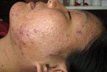 Healthy Living - skin care / by Jenessa Garcia