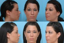 Nose Reshaping Before and Afters / The proof is in the pictures! Here is a compilation of before and after the nose reshaping procedure of PSG clients.