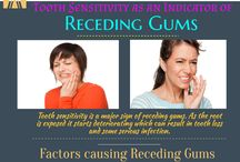Receding Gums / Receding gums can be treated by gum grafting.