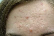 How to Eliminate Acne Scars Pockmark Quickly And Naturally