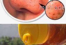 gezicht poriën