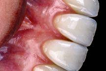 Ceramica dent art