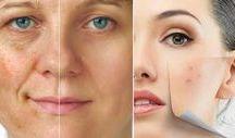 como tirar manchas do rosto com água oxigenada 10v
