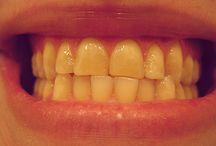 { Dentista Italiano a Londra }