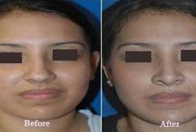 Best Facelift Surgery Blog / Facelift & Neck lift Surgery in Delhi is an age confronting cosmetic surgery procedure. Get detailed treatment plan by best facelift surgeon in India. +91-9818369662, 9958221983
