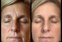 Rodan and Fields Before & After Pictures!! / Want to know what healthier skin looks like?  Here are some pictures to help visualize the after effects of using R&F products!