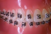 Braces and Etc. / The types of braces that Olson Orthodontics offers.