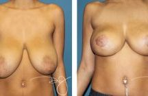 Breast Lift (Mastopexy) Before and After Photos / This sort of night-and-day difference before and after a breast lift is the result of a blend of very special talents. Visit www.drjplasticsurgery.com to learn more! / by Dr.J Plastic Surgery