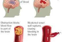 Stroke Info / Information on Strokes and recovery
