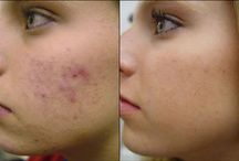Loutus Wellness's Acne Treatment
