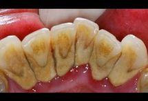 sacar sarro de los dientes