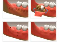 Edmonton wisdom tooth extraction