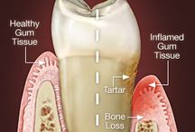 Periodontal Plastic Surgery / Periodontal plastic surgery is designed to restore form and function to the gum tissue, periodontal ligament, and the bone that supports your teeth or an individual tooth. The real long-term goal of any periodontal surgery is to increase the life expectancy of the teeth and their usefulness.