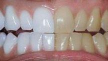 γερά δόντια,