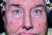 Bruce Gilden Face