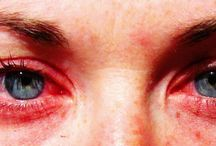 Allergy relief / by Coilylocks