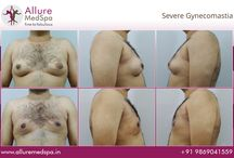 Before And After (Gynecomastia)