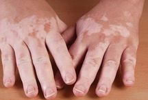 Vitiligo / Vitiligo is a condition that causes depigmentation of parts of the skin. It occurs when melanocytes, the cells responsible for skin pigmentation, die or are unable to function.