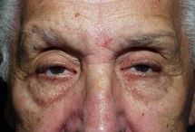 Empty Out Dark Eye Bags With Facial Reflexology Regimens