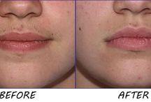 Remove facial hair