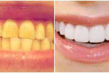 Health-tooth / zdraví