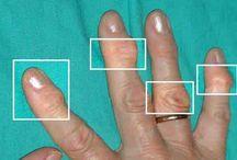 Mains arthrite