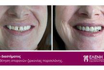 Θεραπείες // Dental Cases / Η κλασική οδοντιατρική επικεντρώνεται στην στοματική υγιεινή, πρόληψη, διάγνωση και θεραπεία των ασθενειών του στόματος.  Η αισθητική οδοντιατρική διατηρεί τις βασικές αρχές της κλασσικής οδοντιατρικής δίνοντας έμφαση στην αισθητική βελτίωση της εμφάνισης των δοντιών του ασθενούς, ώστε να επιτευχθεί το τέλειο χαμόγελο.   Εδώ παρουσιάζουμε ενδεικτικά περιστατικά με φωτογραφίες πριν και μετά την κάθε επέμβαση. Χαρίστε στον εαυτό σας ένα λόγο να χαμογελά περισσότερο! :-)