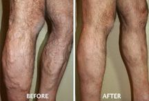 Before and After Photo Gallery /  Varicose Veins  - Venous Ulcerations  - Spider Veins