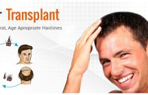 Best Hair Transplant Centre / Get all the updates about hair transplant in New Delhi. Offers are waiting for you.