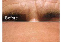 Medycyna Estetyczna przed i po