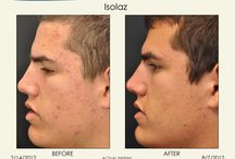Acne Treatments / We have various treatments that can help improve acne and acne scars.