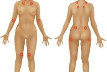 Fibromahalgia