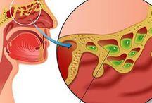 Sinusite rimedi
