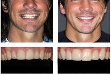 Dental Treatment / Before/after pictures of actual patients at SmileMakers