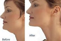 Face, Chin & Neck Exercises / Exercises and Food Choices to Help Fix Face, Chin & Neck Fat & Sagging Skin after Weight Loss or Aging....               Natural Face Lifting / by Barbara