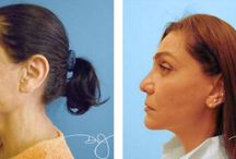 Facial Rejuvenation / To find out if Facial Rejuvenation might be in your future, please call at 310-993-3800