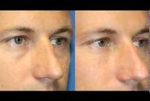 neck liposuction san diego / Carmel Valley Plastic Surgery - Neck liposuction in San Diego. 11943 El Camino Real #100  San Diego, CA 92130 Phone: (858) 259-3223