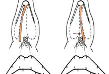 nasal septal deviations