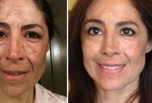 How You Can Carry Out Facial Rubbing Workouts To Reshape Your Face / Remove Face Lines And Raise Flabby Face Skin Via Facial Rubbing Aerobics